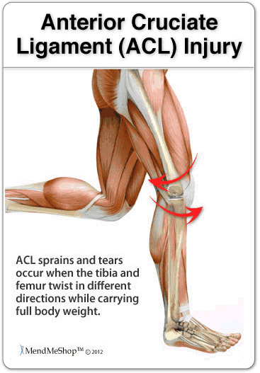 Cause of ACL sprain or ACL tear