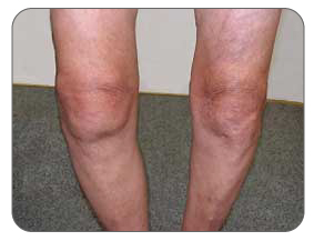 Swelling of the knee due to arthritis