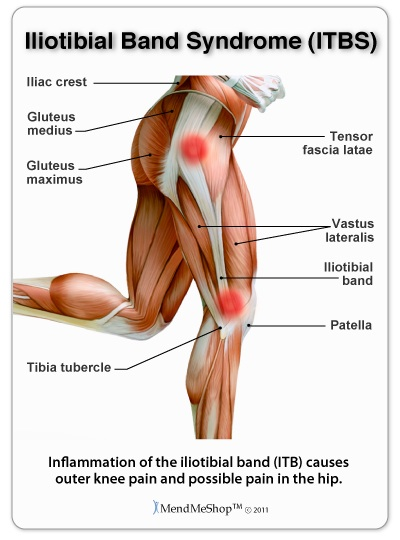 Cyclists knee pain is often caused by iliotibial band syndrome.