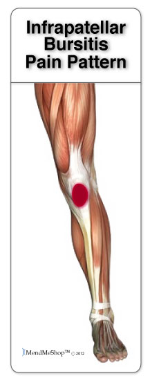 Infrapatellar bursitis pain around and below the knee cap is commonly caused by prepatellar or infrapatellar bursitis ccuart Choice Image