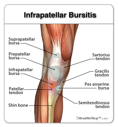 Infrapatellar bursitis infrapatellar bursitis causes pain in the knee ccuart Image collections