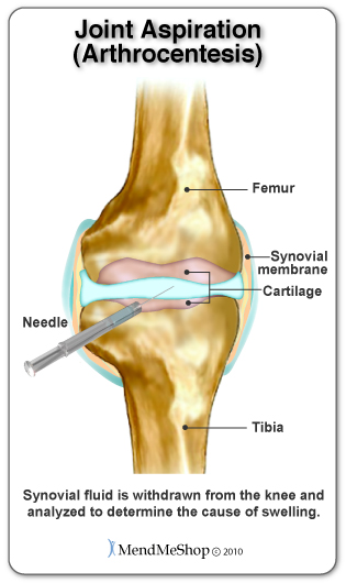 Knee joint aspiration to relieve pain.