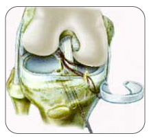 A meniscus may be replaced with an allograft or collegen implant
