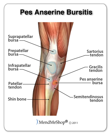 Mendmyknee pes anserine bursitis information and treatments repetitive bending can cause pes anserine bursitis and pain in the knee ccuart Choice Image
