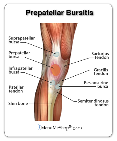 Prepatellar bursitisg kneeling for extended periods of time can cause patellar bursitis in the knee ccuart Images