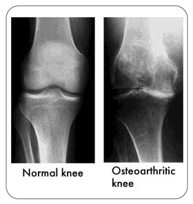 Knee X-rays normal knee and an osteoarthritic knee.